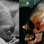 Una deformazione in Congo e un cranio dell'Egitto predinastico